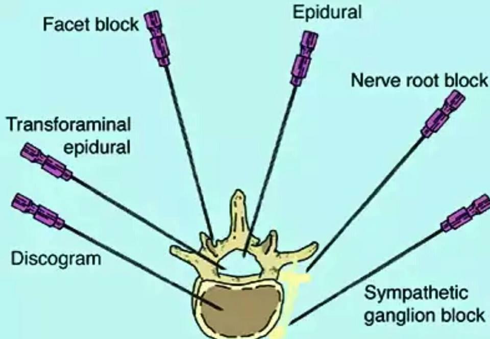 Explain In Detail Regarding Facet Joints Anatomy Disease