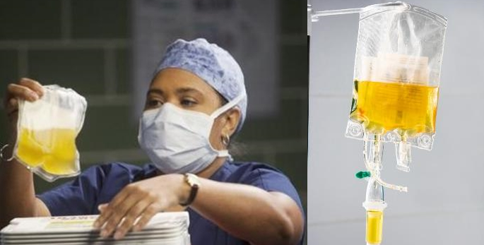 A Banana Bag Is An Intravenous Nutritional Supplement That Commonly Prescribed To Hospital Patients Who Have Vitamin Or Mineral Deficiencies Chemical